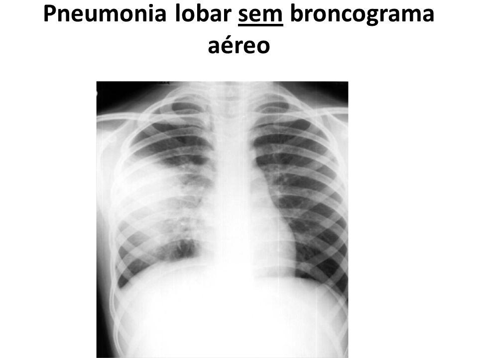 Pneumonia lobar sem broncograma aéreo