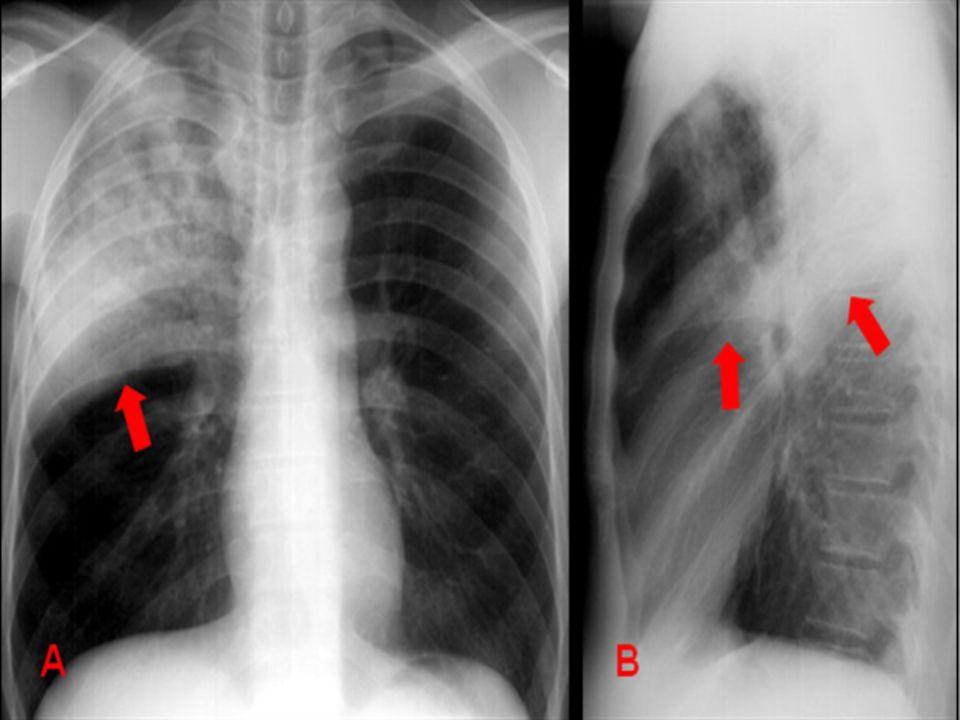 * Radiografias frontal (PA) e perfil mostram consolidação (pneumonia pelo Streptococcus pneumoniae) de lobo superior direito. Observar o limite cissural nítido (setas) e a presença de broncobramas aéreos.