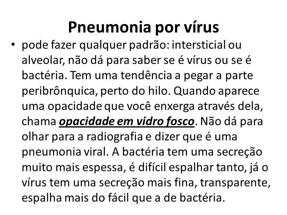 Pneumonia por vírus