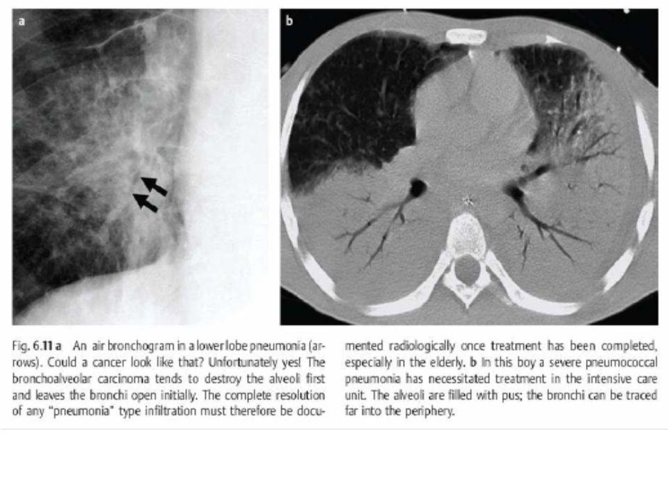 Essa opacidade chama pneumonia, uma infecção do pulmão