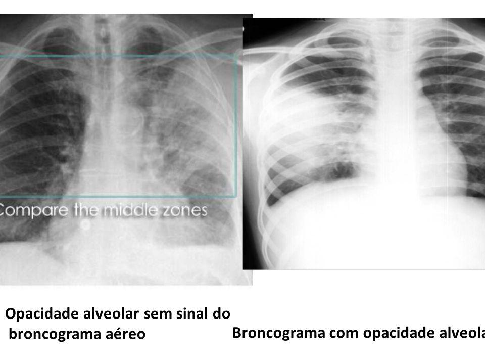Opacidade alveolar sem sinal do broncograma aéreo