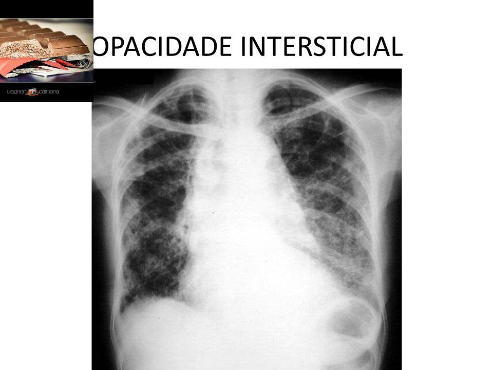 OPACIDADE INTERSTICIAL
