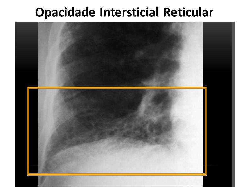 Opacidade Intersticial Reticular