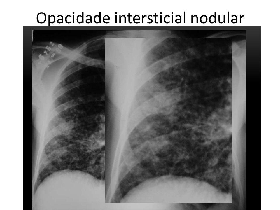 Opacidade intersticial nodular