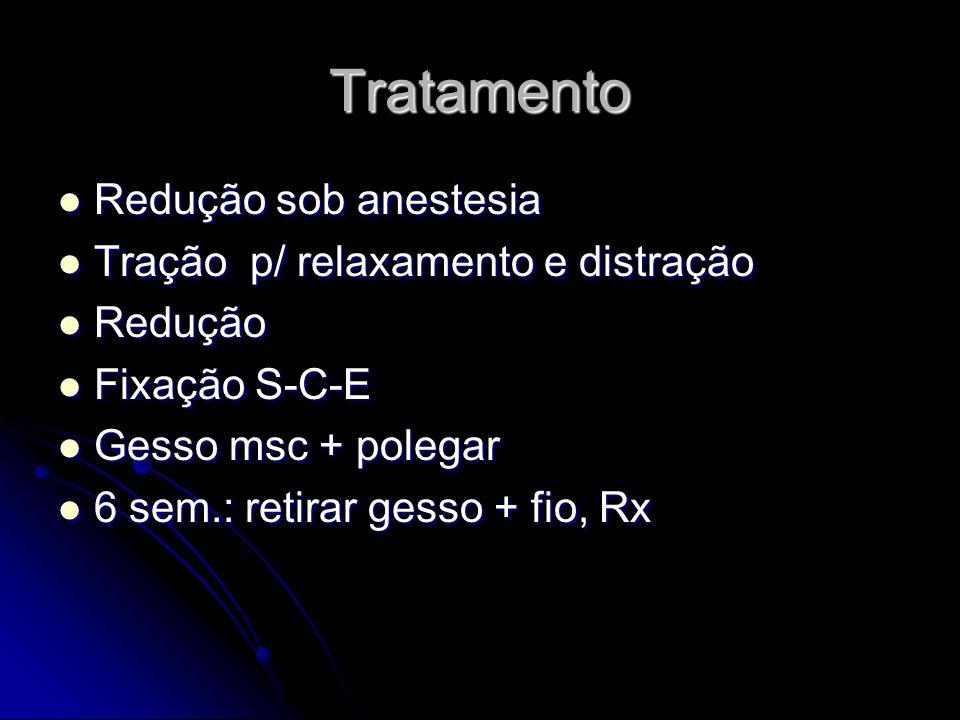 Tratamento Redução sob anestesia Tração p/ relaxamento e distração