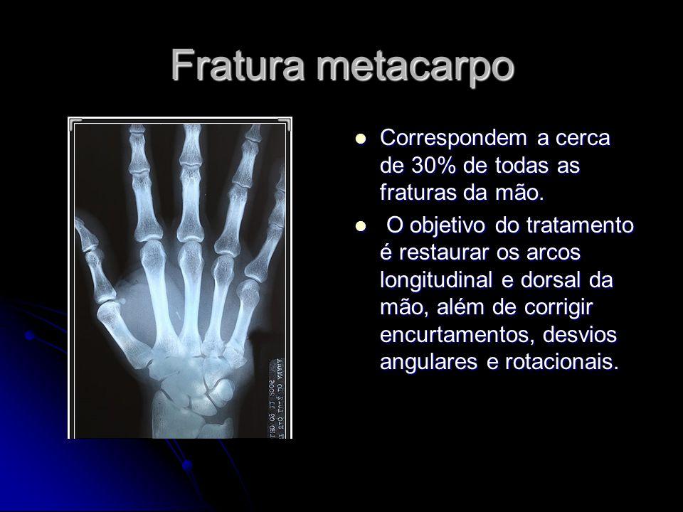 Fratura metacarpo Correspondem a cerca de 30% de todas as fraturas da mão.