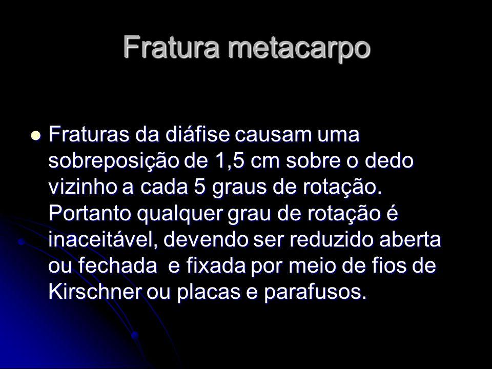Fratura metacarpo