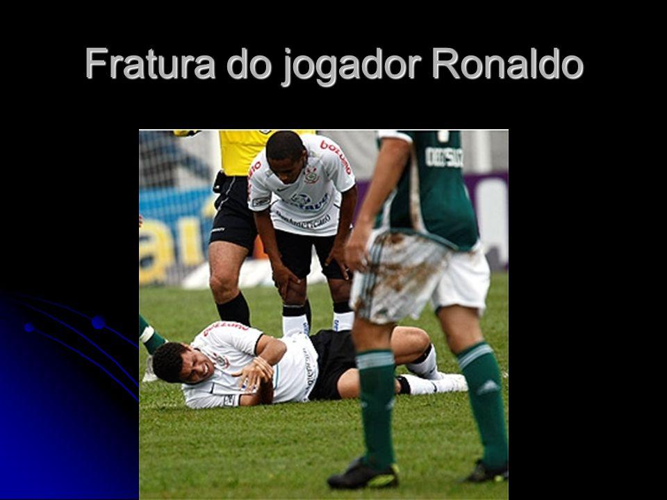 Fratura do jogador Ronaldo