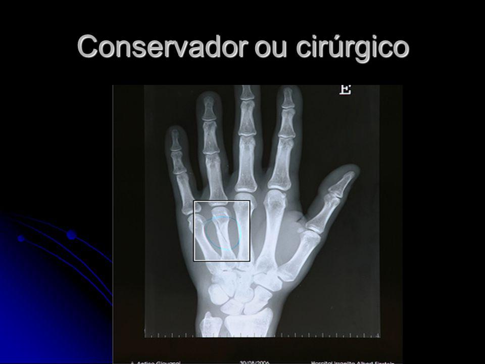 Conservador ou cirúrgico