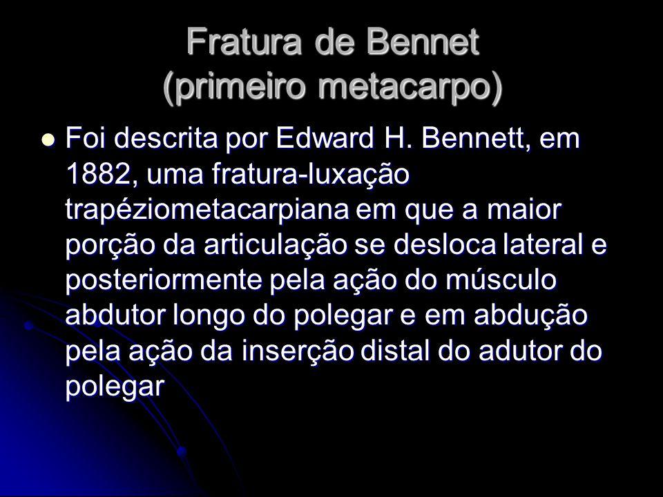 Fratura de Bennet (primeiro metacarpo)