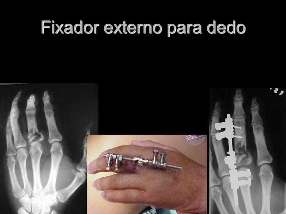 Fixador externo para dedo