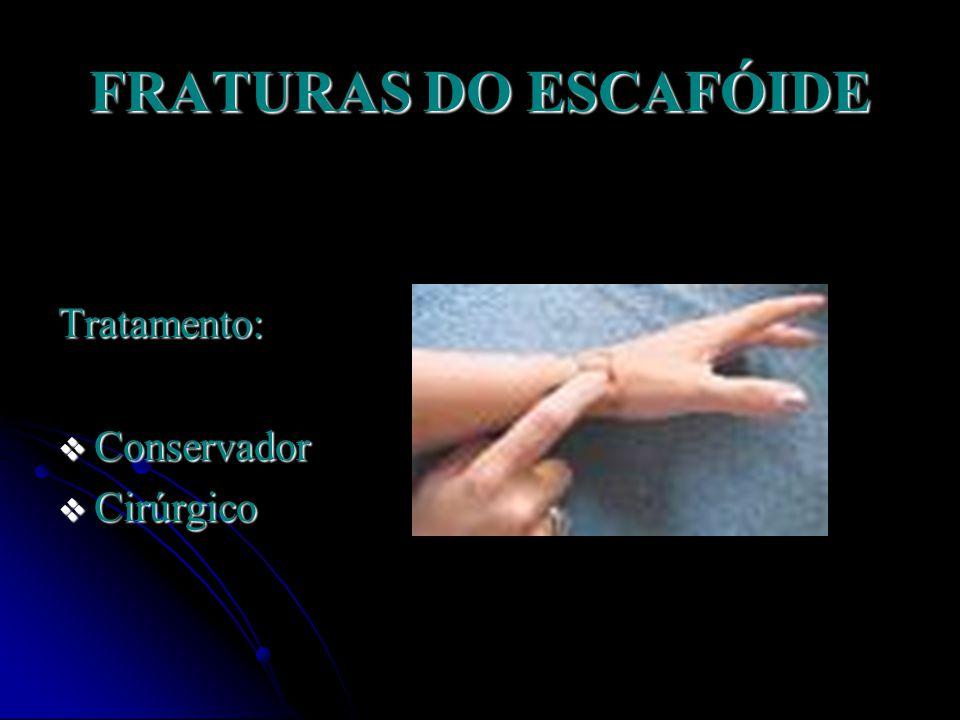 FRATURAS DO ESCAFÓIDE Tratamento: Conservador Cirúrgico