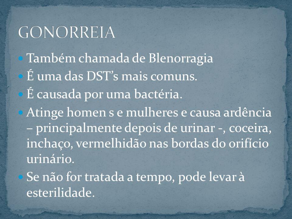 GONORREIA Também chamada de Blenorragia É uma das DST's mais comuns.
