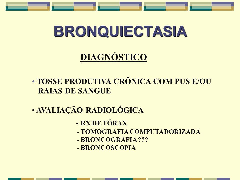 BRONQUIECTASIA DIAGNÓSTICO TOSSE PRODUTIVA CRÔNICA COM PUS E/OU