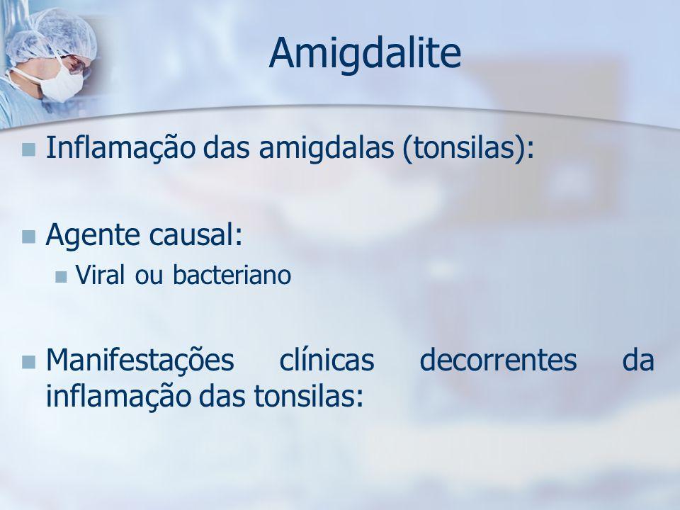 Amigdalite Inflamação das amigdalas (tonsilas): Agente causal: