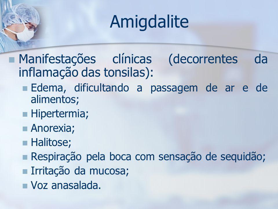 Amigdalite Manifestações clínicas (decorrentes da inflamação das tonsilas): Edema, dificultando a passagem de ar e de alimentos;