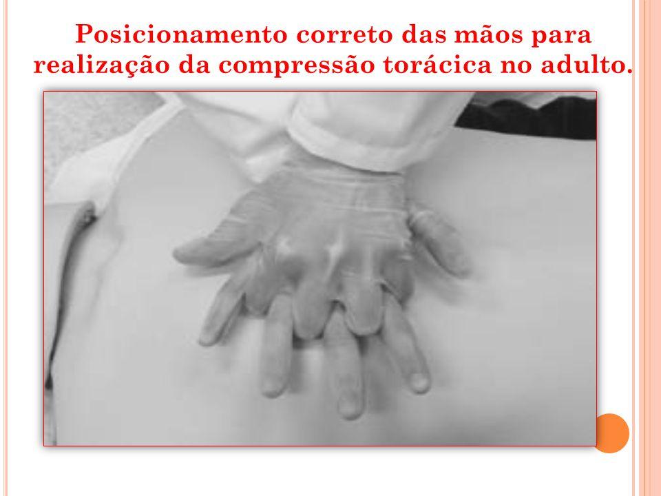 Posicionamento correto das mãos para realização da compressão torácica no adulto.