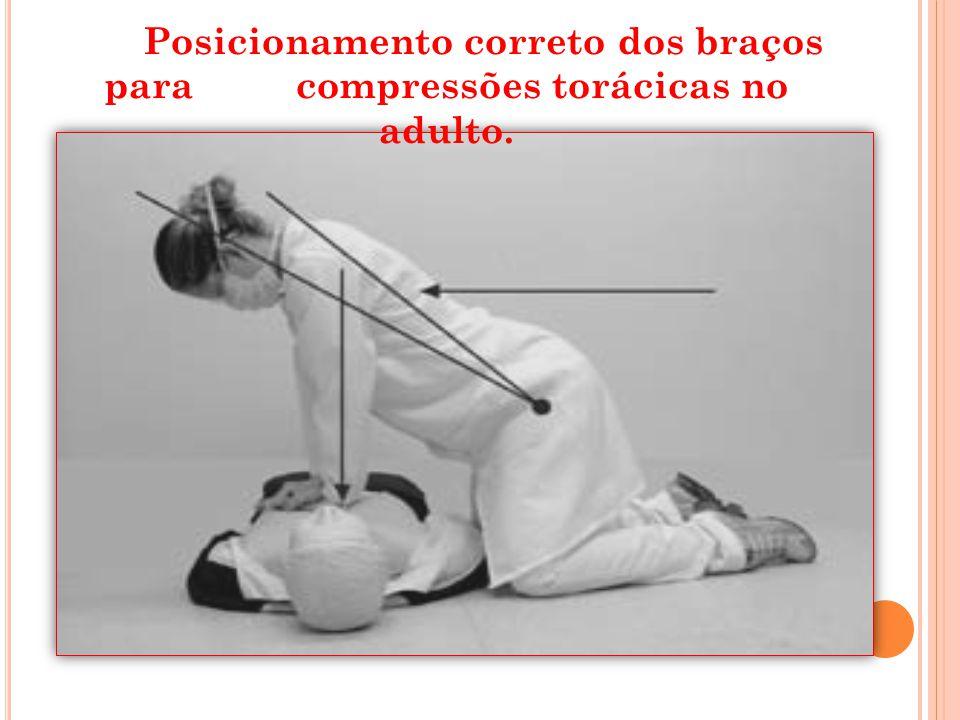 Posicionamento correto dos braços para compressões torácicas no adulto.