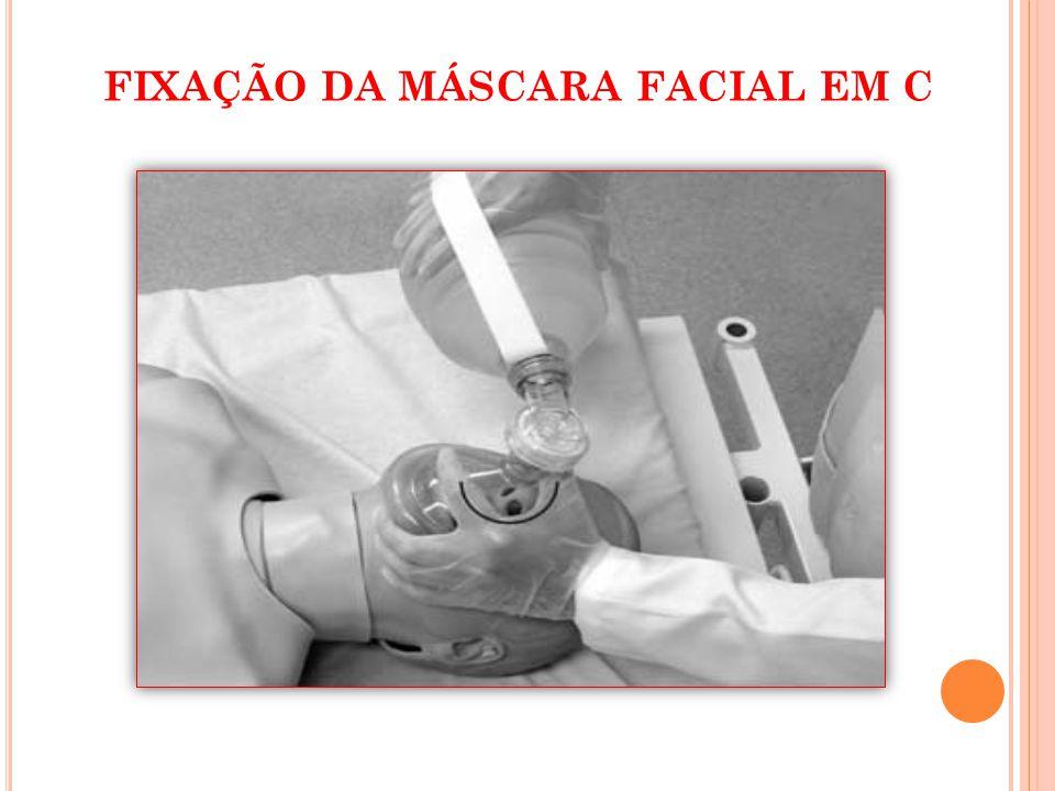 FIXAÇÃO DA MÁSCARA FACIAL EM C