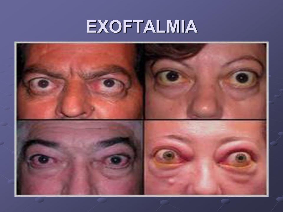 EXOFTALMIA