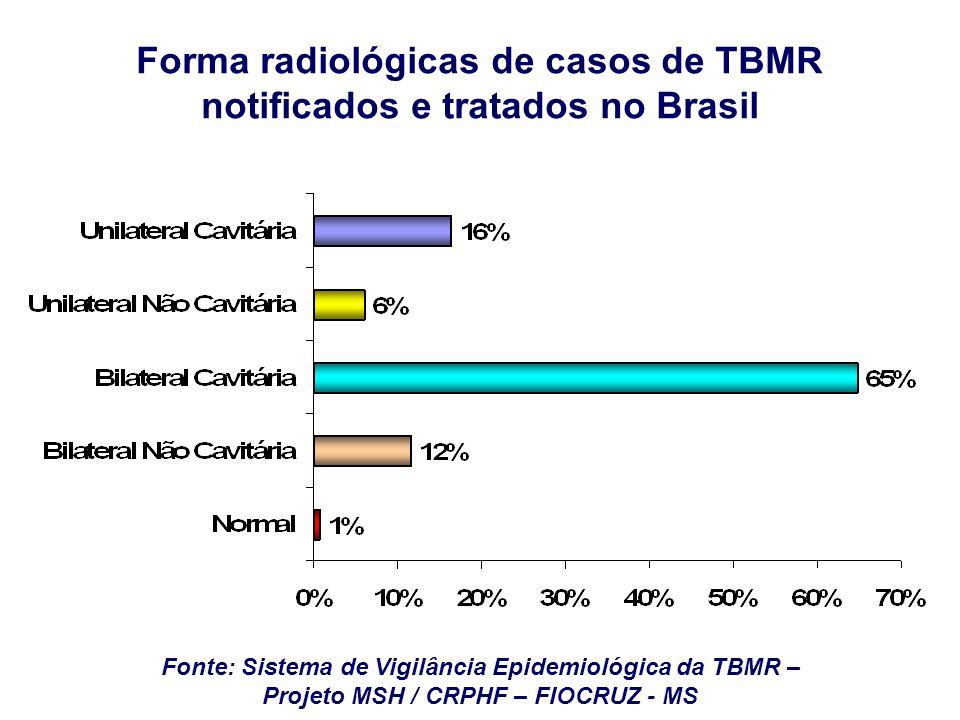 Forma radiológicas de casos de TBMR notificados e tratados no Brasil
