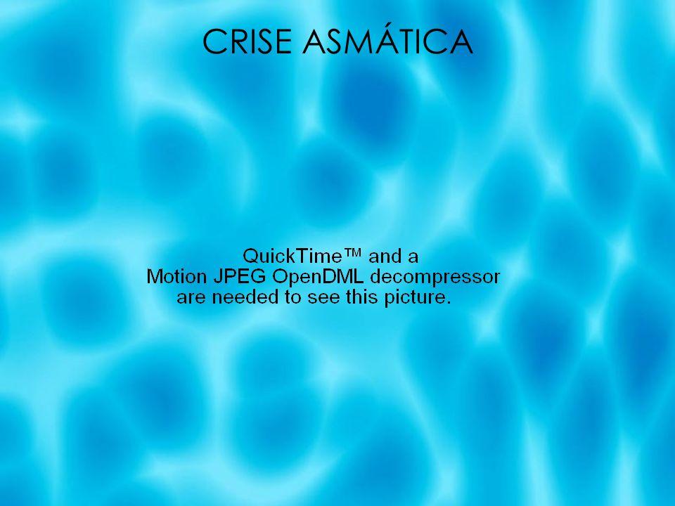 CRISE ASMÁTICA