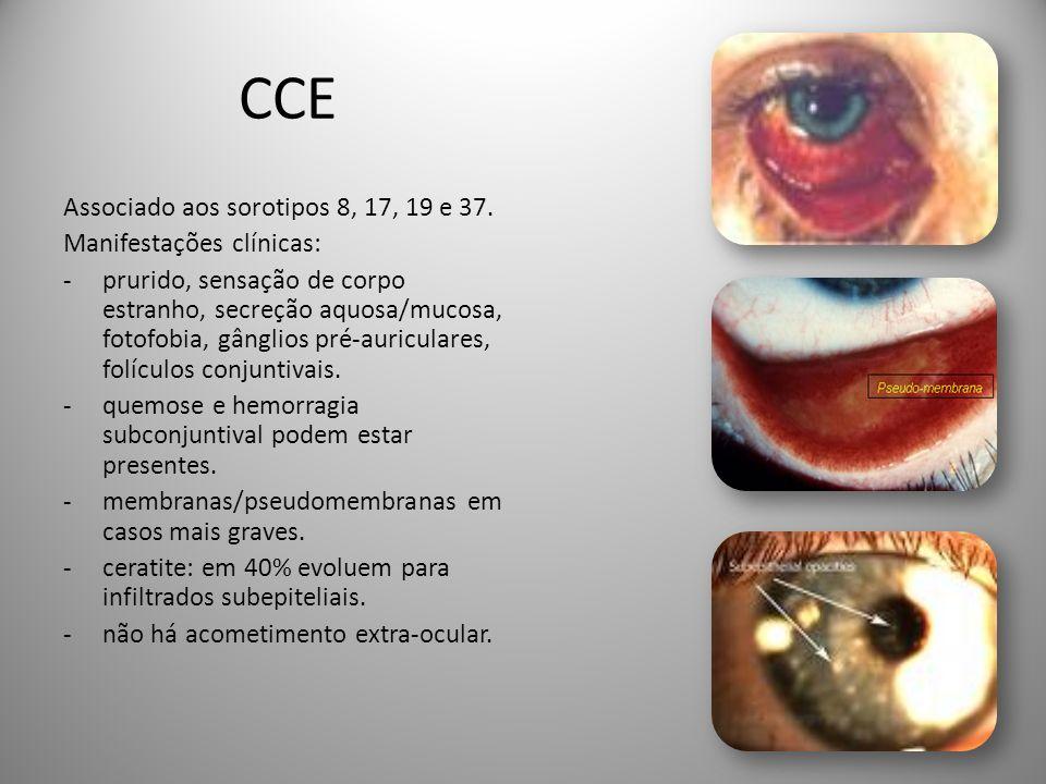 CCE Associado aos sorotipos 8, 17, 19 e 37. Manifestações clínicas: