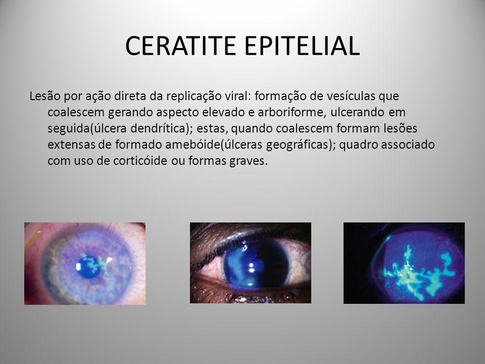 CERATITE EPITELIAL