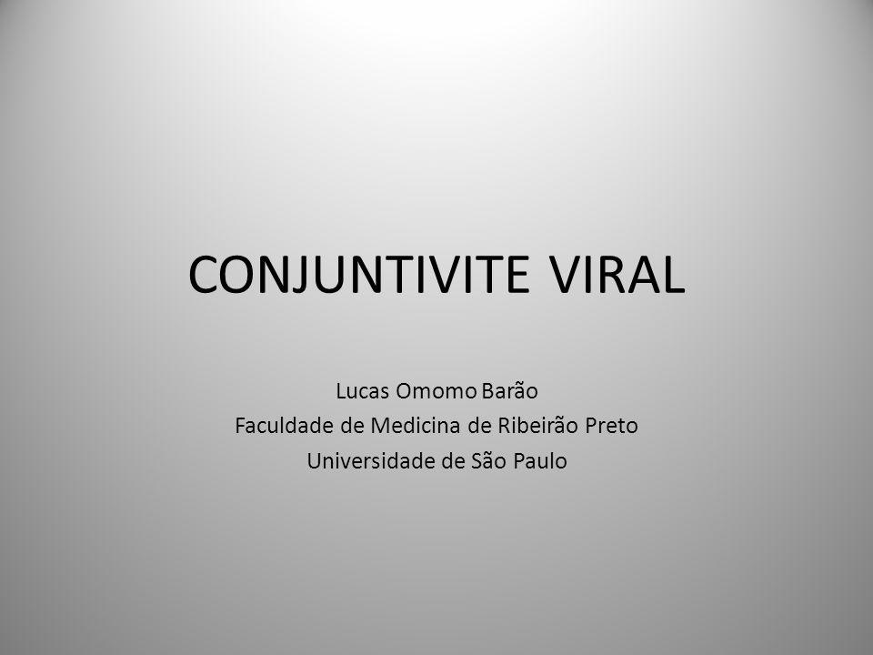 CONJUNTIVITE VIRAL Lucas Omomo Barão