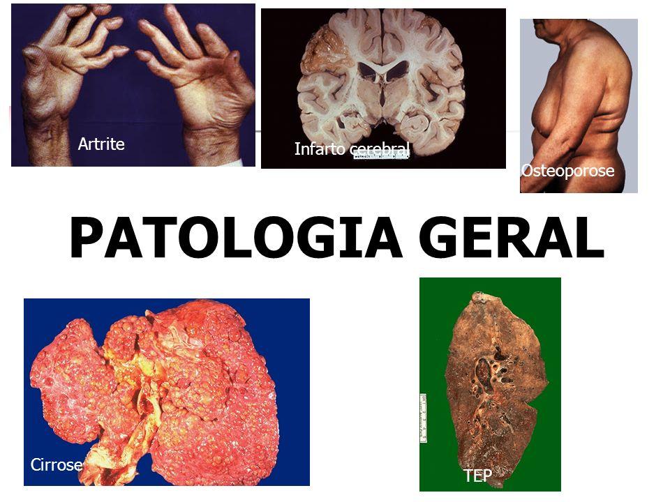 Artrite Infarto cerebral Osteoporose PATOLOGIA GERAL Cirrose TEP