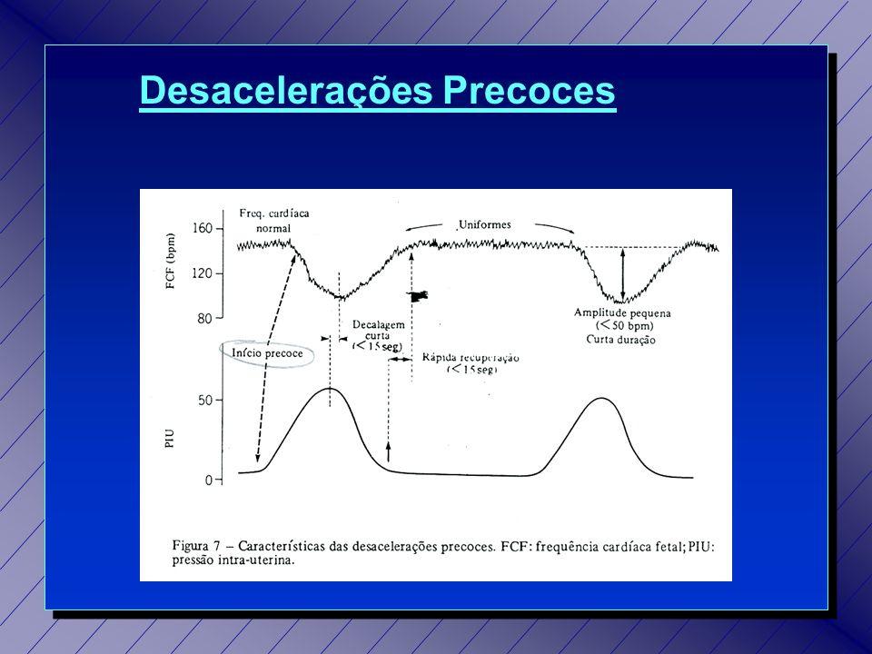 Desacelerações Precoces