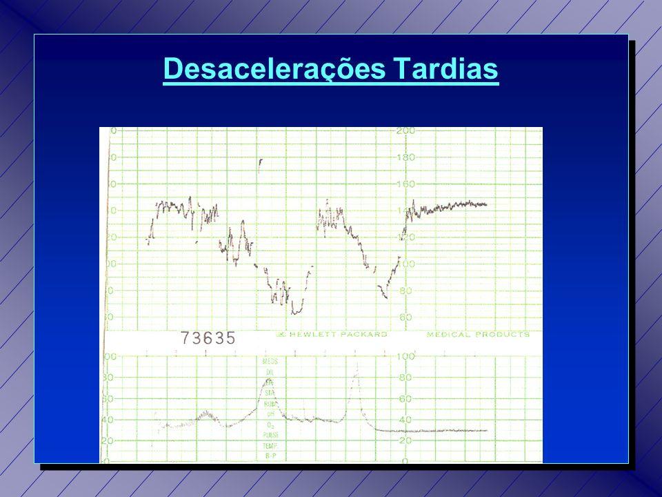 Desacelerações Tardias