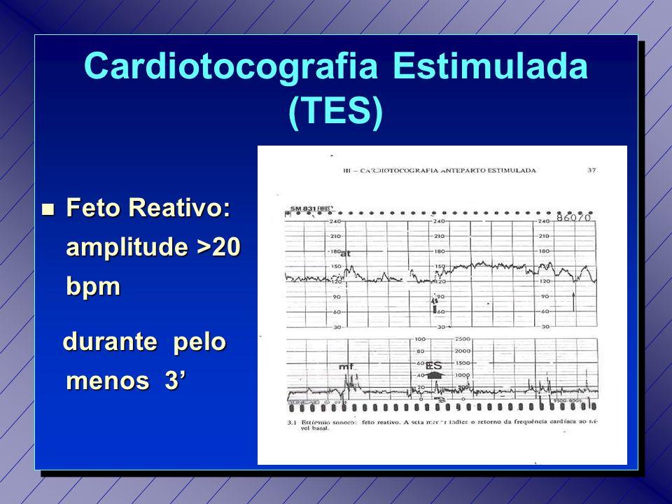 Cardiotocografia Estimulada (TES)