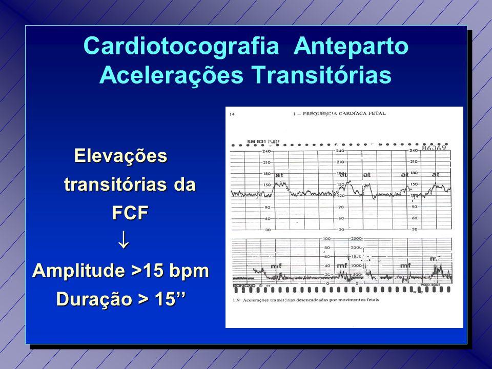 Cardiotocografia Anteparto Acelerações Transitórias
