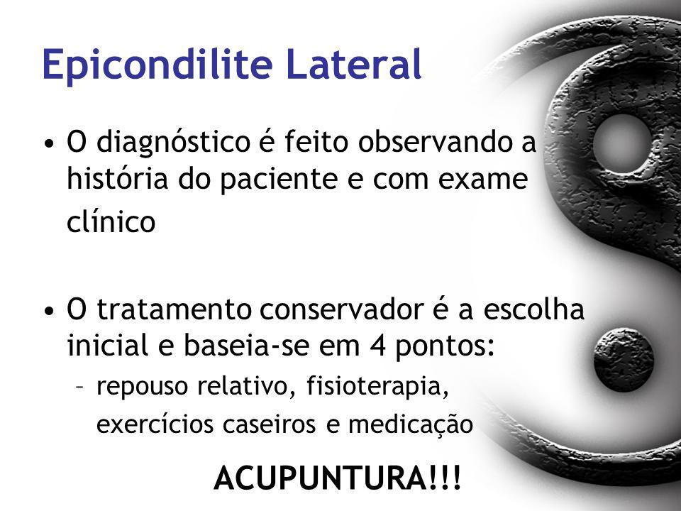 Epicondilite Lateral ACUPUNTURA!!!