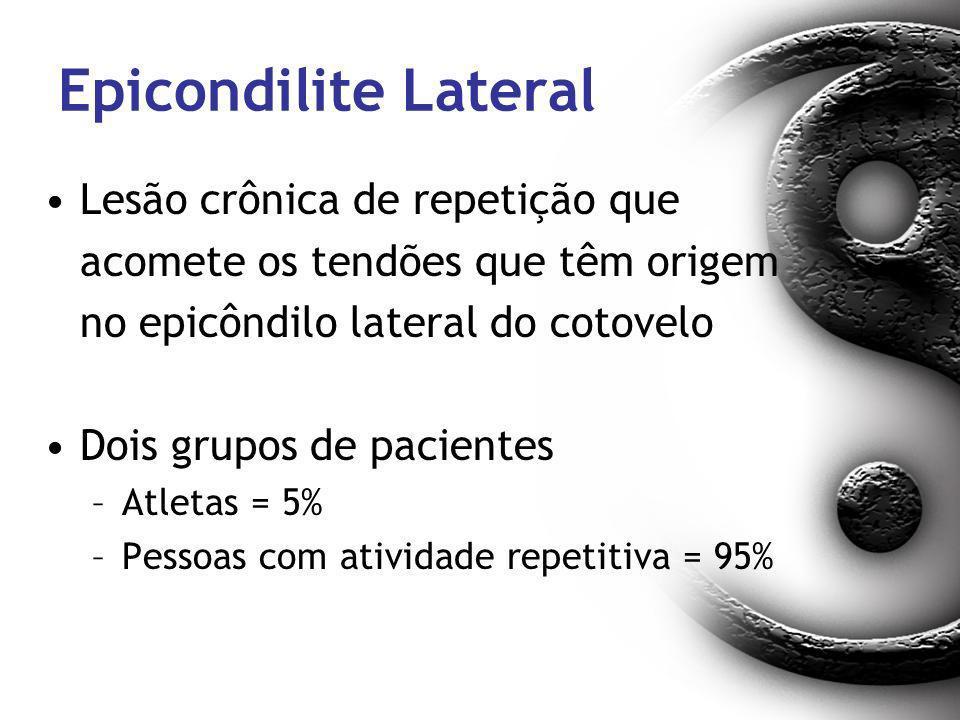 Epicondilite Lateral Lesão crônica de repetição que