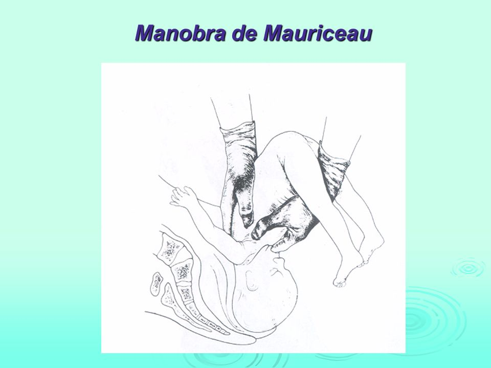 Manobra de Mauriceau