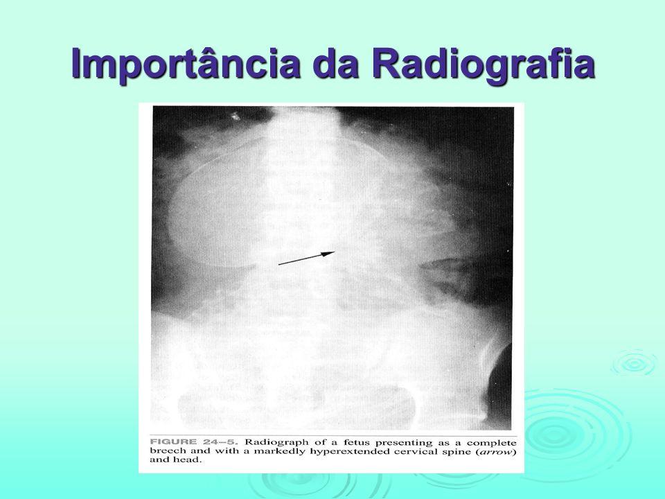 Importância da Radiografia