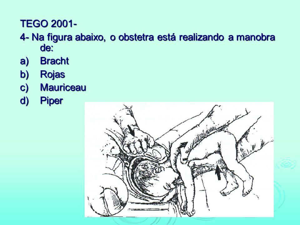 TEGO 2001- 4- Na figura abaixo, o obstetra está realizando a manobra de: a) Bracht. b) Rojas. c) Mauriceau.
