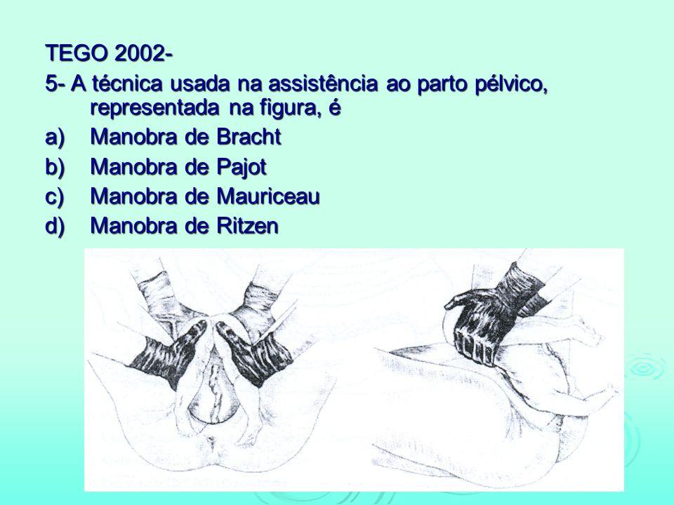 TEGO 2002- 5- A técnica usada na assistência ao parto pélvico, representada na figura, é. a) Manobra de Bracht.