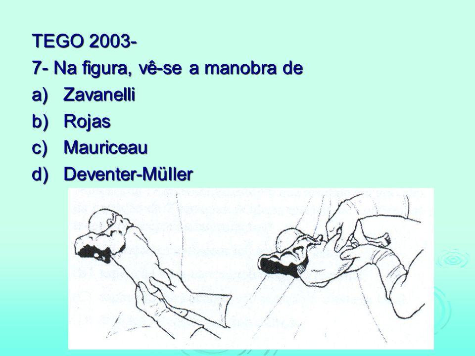 TEGO 2003- 7- Na figura, vê-se a manobra de a) Zavanelli b) Rojas c) Mauriceau d) Deventer-Müller