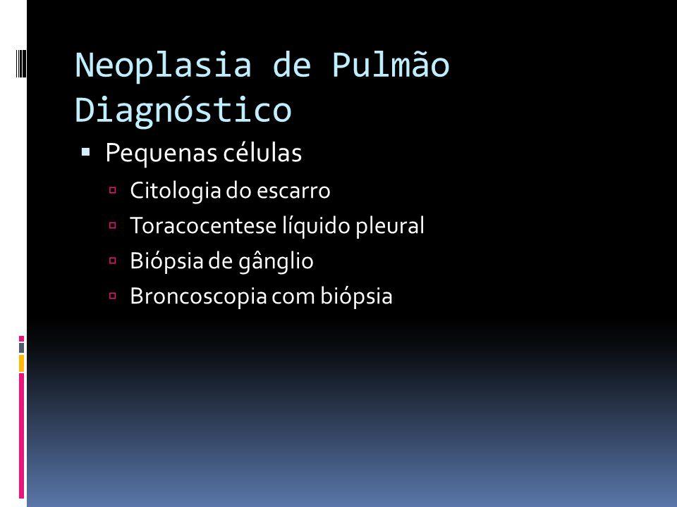 Neoplasia de Pulmão Diagnóstico
