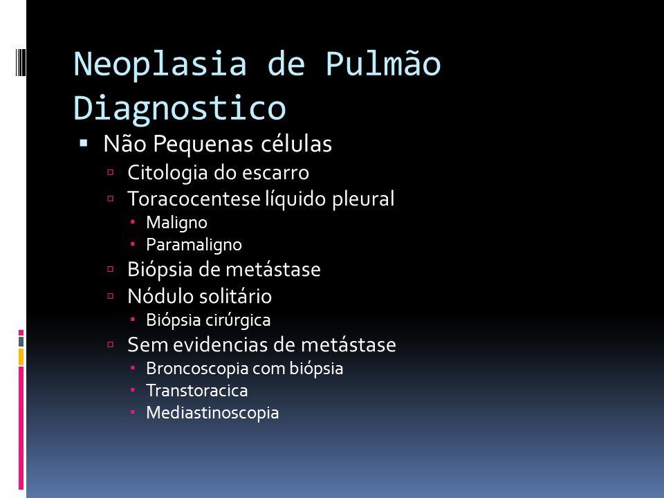 Neoplasia de Pulmão Diagnostico