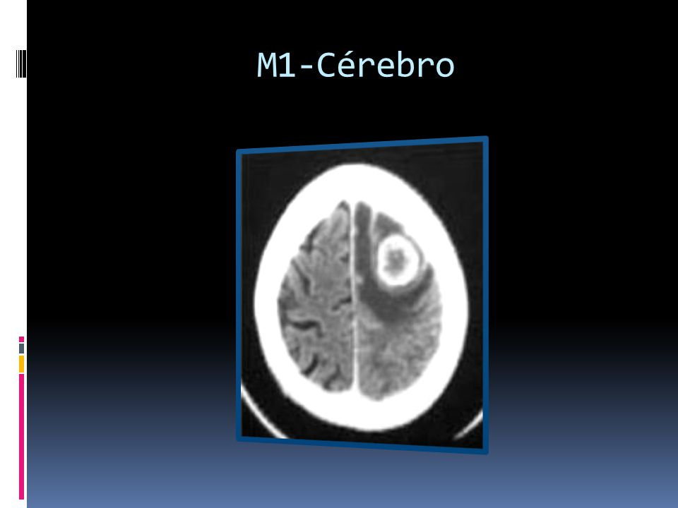 M1-Cérebro