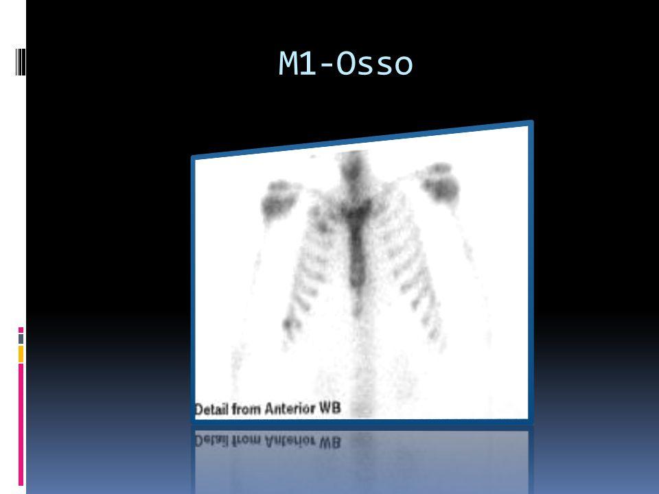 M1-Osso