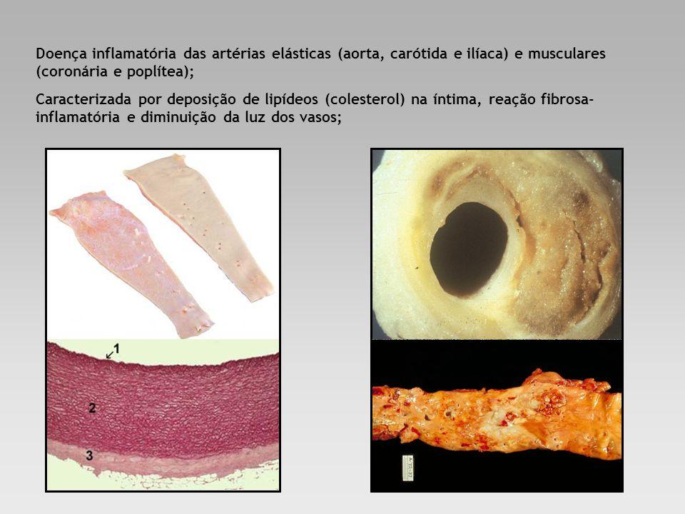 Doença inflamatória das artérias elásticas (aorta, carótida e ilíaca) e musculares (coronária e poplítea);