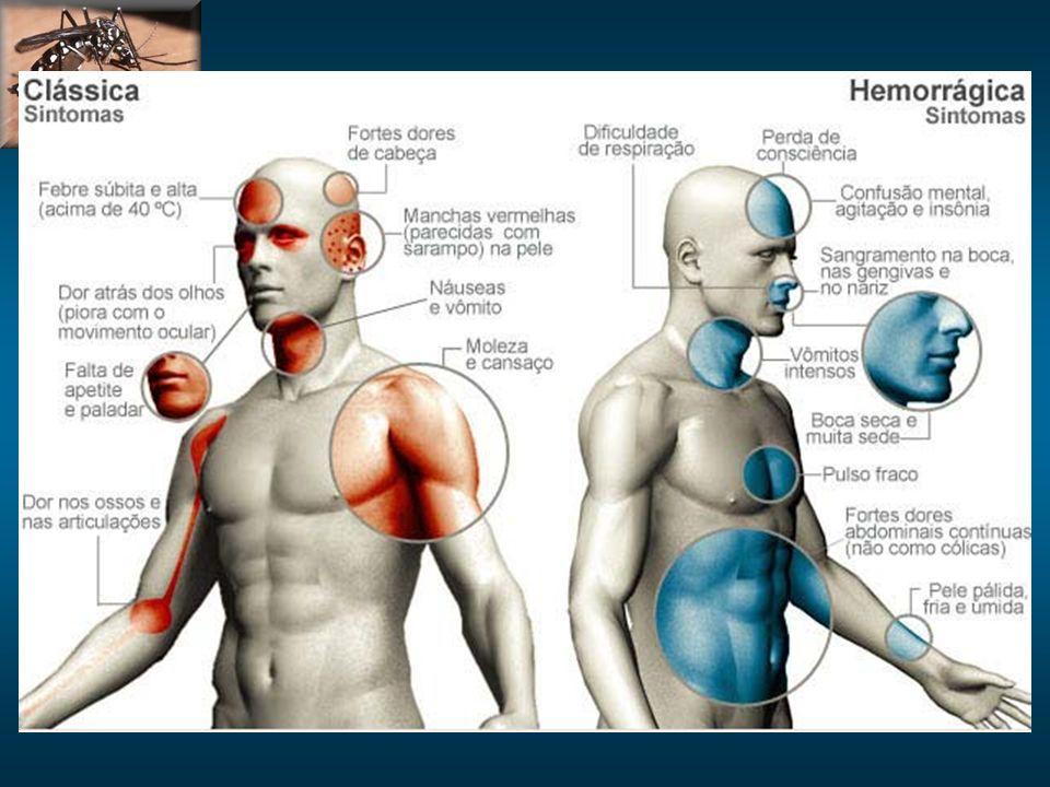 Hemorr: hipotensao