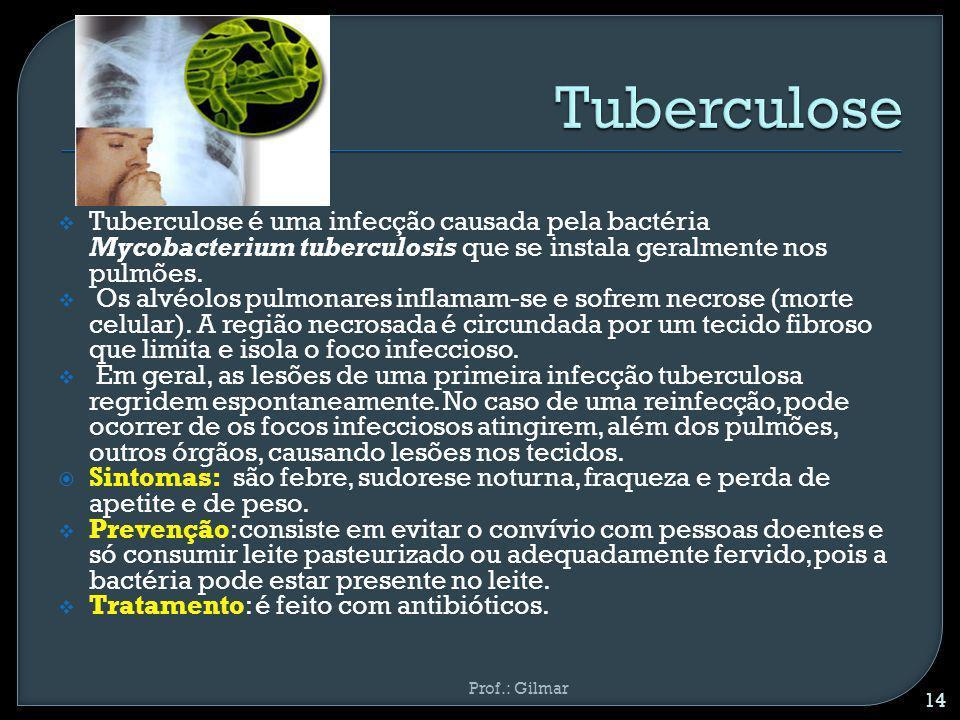 Tuberculose Tuberculose é uma infecção causada pela bactéria Mycobacterium tuberculosis que se instala geralmente nos pulmões.