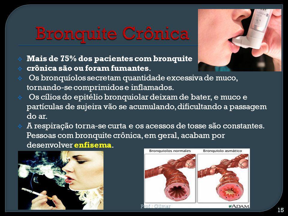 Bronquite Crônica Mais de 75% dos pacientes com bronquite