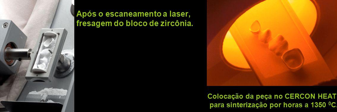 Após o escaneamento a laser, fresagem do bloco de zircônia.